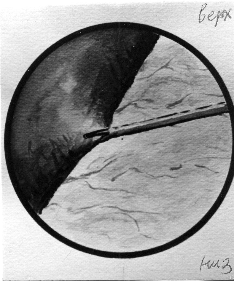 перитонеоскоп фото